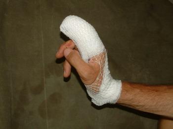 Kéztorna, kézsérülés utáni rehabilitáció gyógytornával